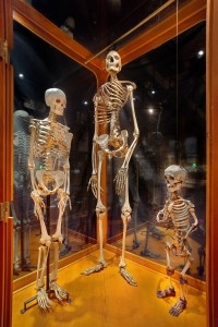 Compare and Contrast: Giant, Dwarf and Average Skeletons George Widman, 2009, for the Mütter Museum of The College of Physicians of Philadelphia